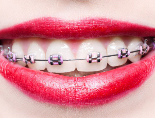 How Can I Clean My Teeth with Braces