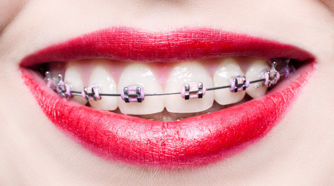 Lady Smiling with Braces